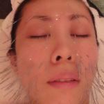 美容鍼体験してきました(2)