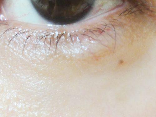 8日目:涙袋にヒアルロン酸注入
