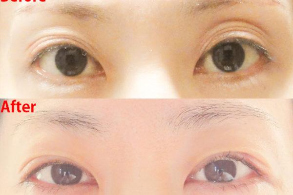 【体験記】切らない眼瞼下垂手術の口コミ:5か月後までの経過写真とダウンタイムの様子(腫れ・内出血・痛み)