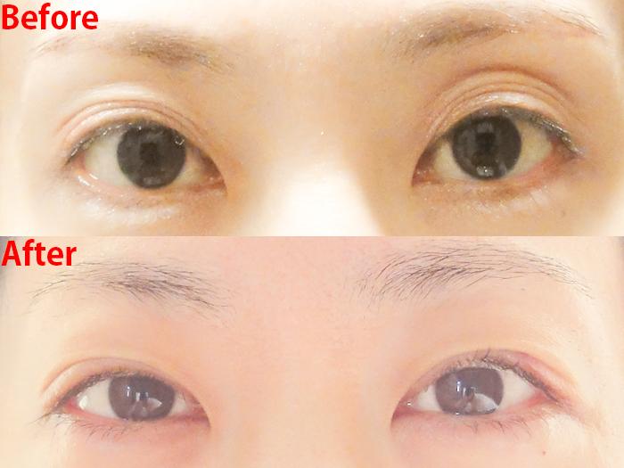 切らない眼瞼下垂手術 ビフォーアフター1回目
