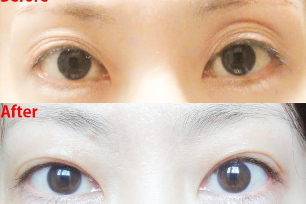 【口コミ】切らない眼瞼下垂(埋没法)再手術:どれくらいで元に戻った?元に戻りやすい原因とは?