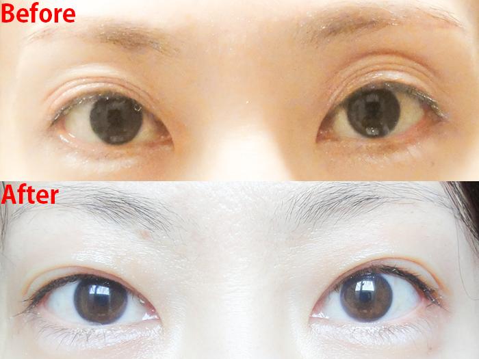 切らない眼瞼下垂手術 ビフォーアフター2回目