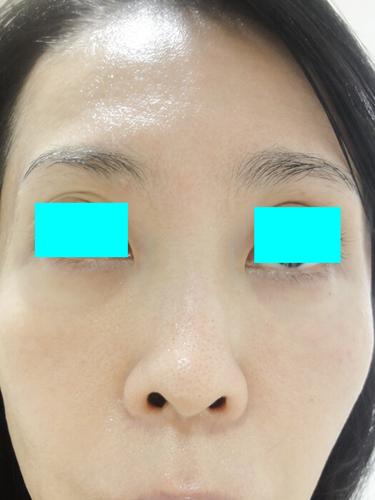 レーザートーニング ベル美容外科