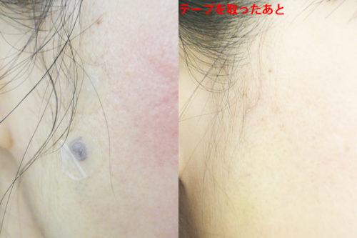マジックリフトの効果を術後から1年後までの経過写真で検証:切らないフェイスリフト