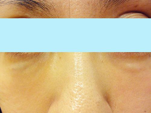 目の下 ヒアルロン酸 失敗DSC03102(1)