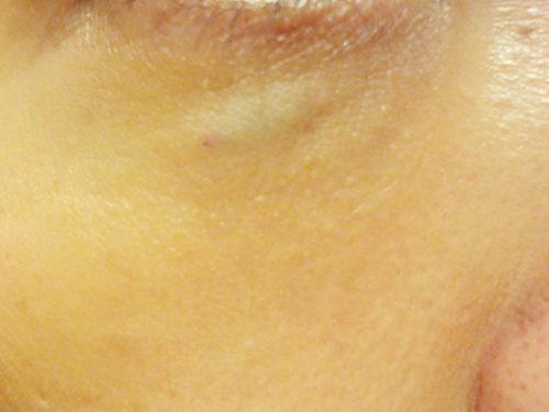 目の下 ヒアルロン酸 失敗DSC03103