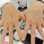 憧れの美容医療:「金の糸美容術」に関するよくある勘違いベスト3