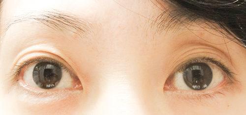 眼瞼下垂手術 3回目 before
