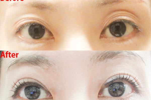 片目だけ元に戻る?!「切らない眼瞼下垂再手術」3回目口コミ:ビフォーアフター・経過写真