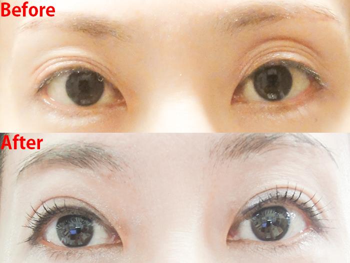 切らない眼瞼下垂手術 ビフォーアフター 3回目