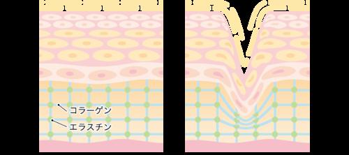 肌断面 コラーゲン エラスチン564568