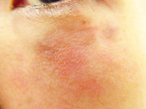ベビーコラーゲン注射(ヒューマラジェンHumallagen)img_2009