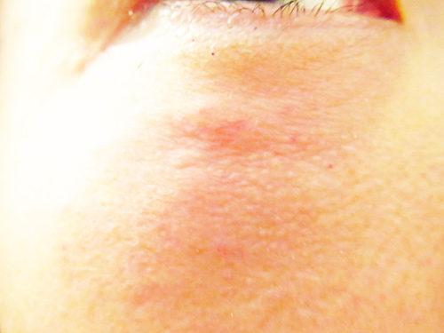 ベビーコラーゲン注射(ヒューマラジェンHumallagen)img_2010