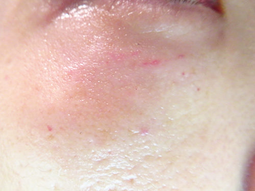 ベビーコラーゲン注射(ヒューマラジェンHumallagen)img_2036
