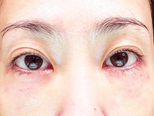 ベビーコラーゲン注射(ヒューマラジェンHumallagen)img_2049