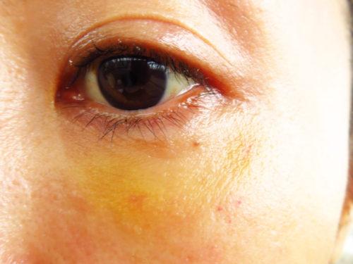 ベビーコラーゲン注射(ヒューマラジェンHumallagen)img_2335