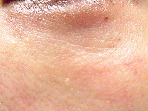 ベビーコラーゲン注射(ヒューマラジェンHumallagen)img_2442