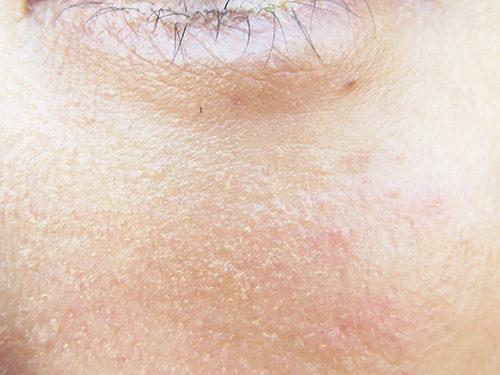 ベビーコラーゲン注射(ヒューマラジェンHumallagen)img_6773
