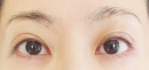 眼瞼下垂手術3回目手術翌朝