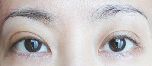 眼瞼下垂手術3回目手術後3日目