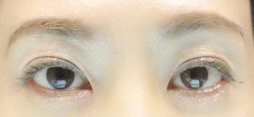 眼瞼下垂手術4回目手術10日後