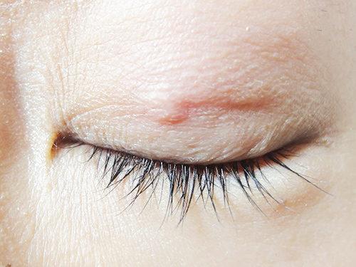 眼瞼下垂手術3回目手術後1ヶ月と10日目