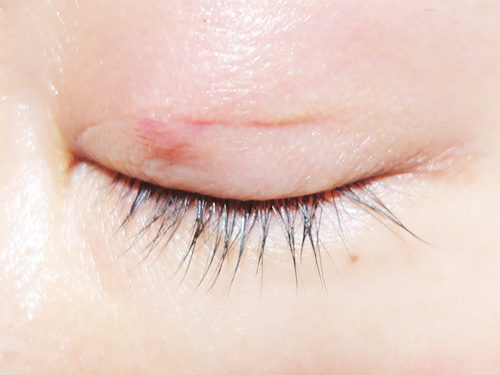 眼瞼下垂手術3回目手術後1ヶ月と15日目