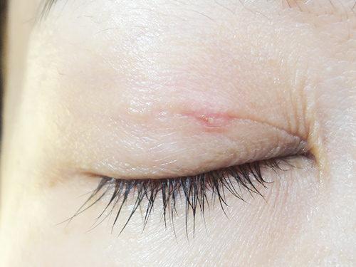 眼瞼下垂手術3回目手術後2ヶ月目