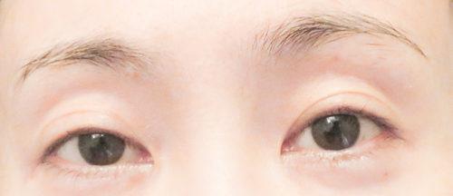 眼瞼下垂手術