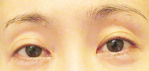眼瞼下垂手術4回目手術1年8ヶ月後