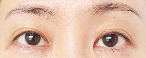 眼瞼下垂手術4回目手術1年8ヶ月後SRF注入