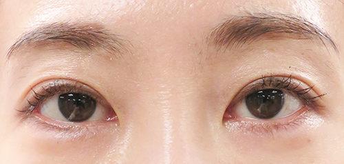 眼瞼下垂手術4回目手術1年後