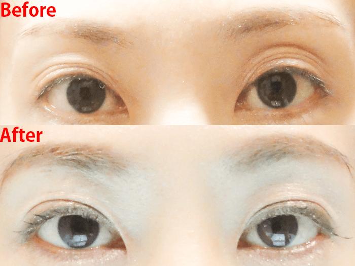 切らない眼瞼下垂手術 ビフォーアフター