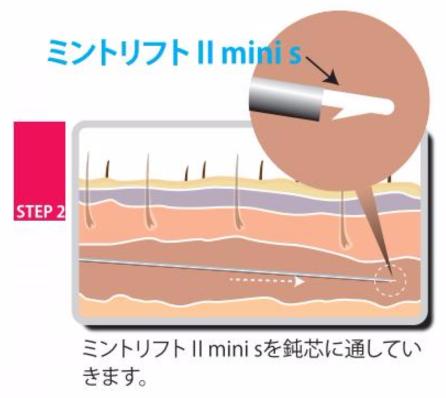 ミントリフトII mini Sの挿入方法
