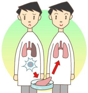 肌再生医療「脂肪幹細胞注入(SRF注入)