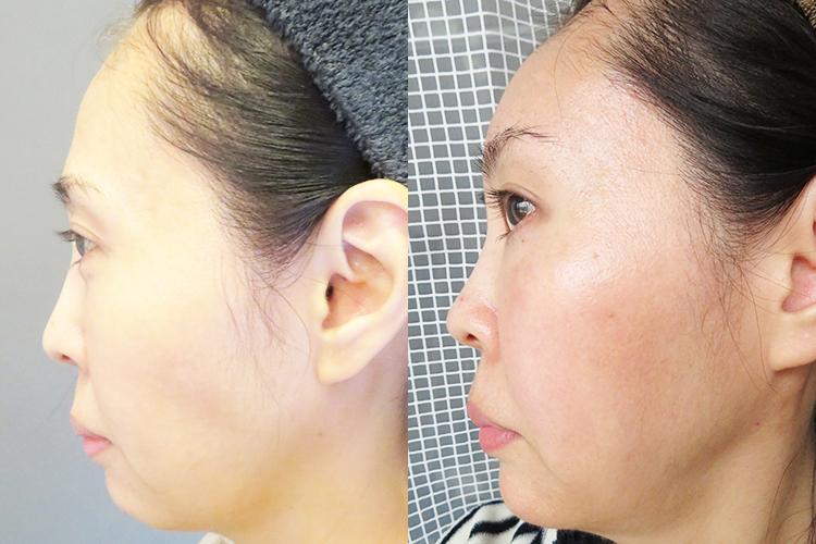 肌再生医療「脂肪幹細胞注入(SRF注入)before & After 比較