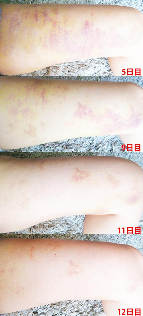 肌再生医療「脂肪幹細胞注入(SRF注入)脂肪吸引内出血経過