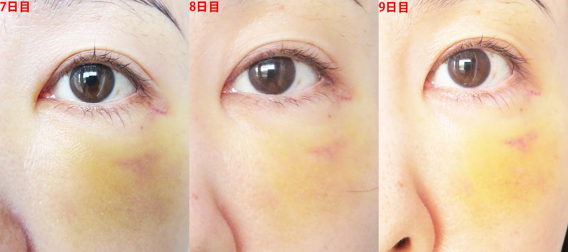肌再生医療「脂肪幹細胞注入(SRF注入)目の下内出血