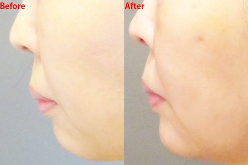 肌再生医療 脂肪幹細胞注入(SRF注入)レディエッセ