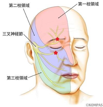 神経ブロック注射