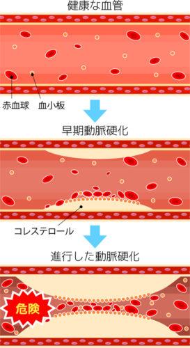 動脈硬化 イラスト