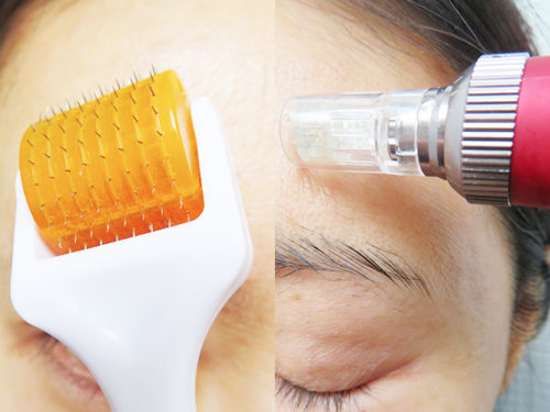 ダーマローラーと電動ダーマスタンプ(ダーマペン)どちらが刺さるか・皮が剥けるかを顔半分ずつで比較