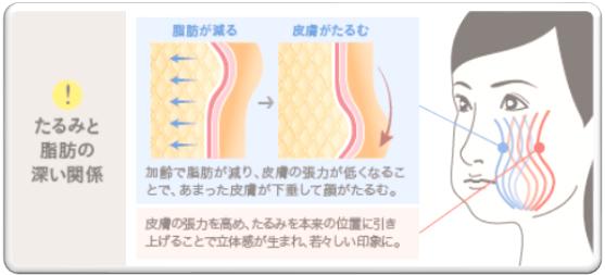 ザ・クリニック シルエットソフト 3dセルリフト 脂肪幹細胞注入 SRF注入
