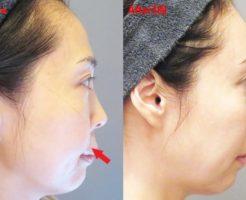 肌再生医療 脂肪幹細胞注入(SRF注入)3回目 before & after