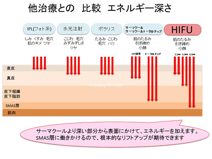 HIFUとサーマクールの比較