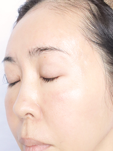 セルフダーマローラー21回目:医療用チタン針540本針&2.5mmを使ってみた口コミ