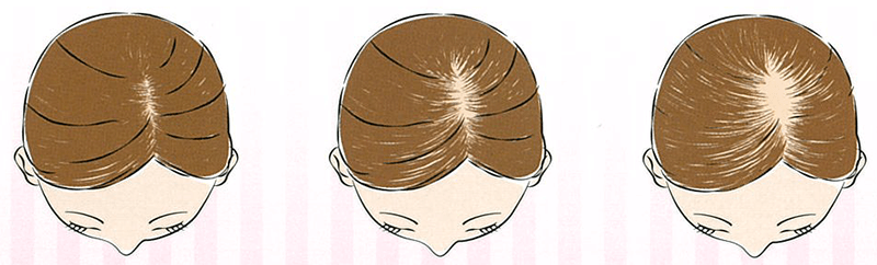 ルルシア 育毛剤