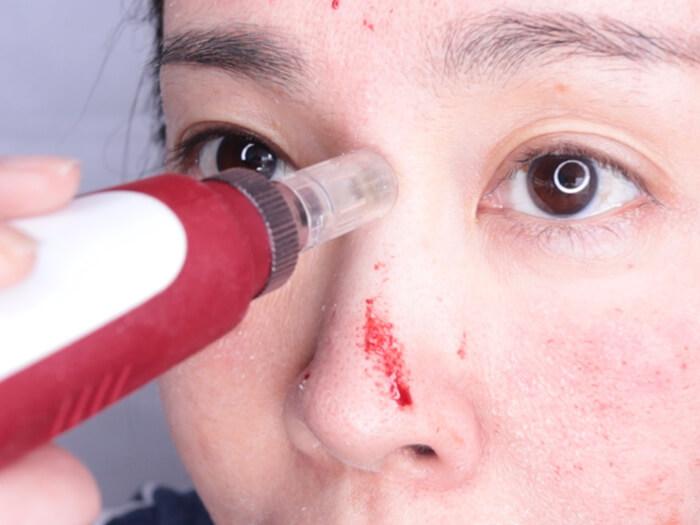 セルフダーマローラー22回目:半顔ずつ電動ダーマスタンプ2.0mmと医療用チタン針540本針2.5mmを使ってみた