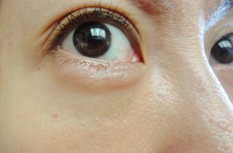 涙 袋 腫れ 片目 痛い 目の下(涙袋)が腫れる原因と対策について